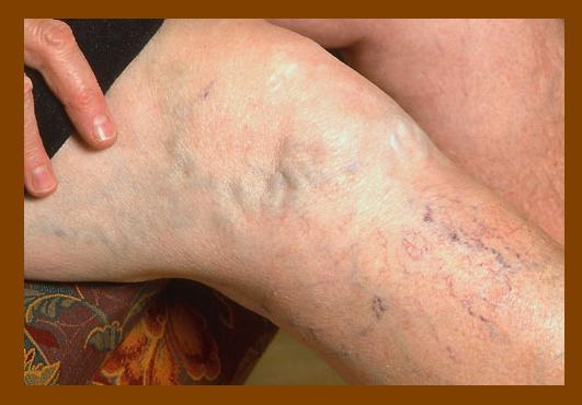 Symptoms of Varicose Veins