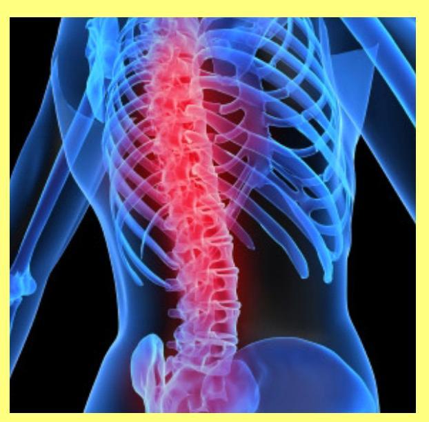 Degenerative Spine Conditions