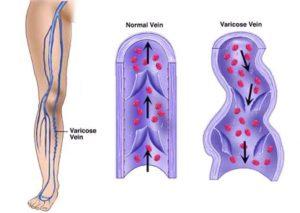Common Vein Conditions
